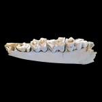 dents vache 4